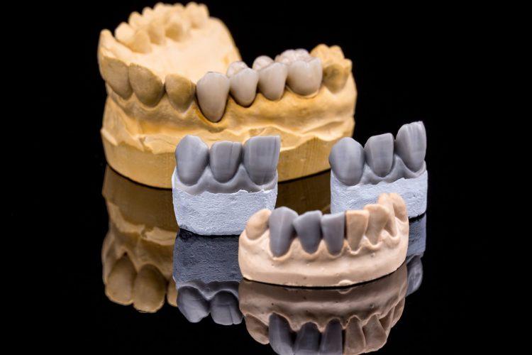 partial-dentures-dublin